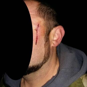 На рибоохоронного патрульного Київщини здійснено напад